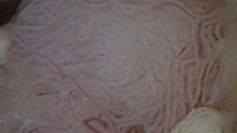 Traitement conservateur du cancer de l'endomètre pour préservation de la fertilité – Enquête